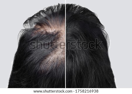Women baldness alopecia. Hair after using cosmetic powder to thicken hair. Before and after.