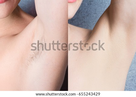 women's underarm hair removal before after concept