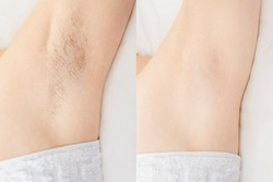 Women underarm hair removal. Concept before and after shaving sugar depilation laser.