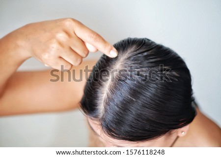 Women with thin hair caused by hair loss symptoms.