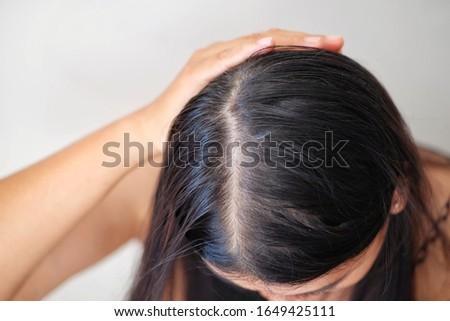 Women with thin hair loss problem.