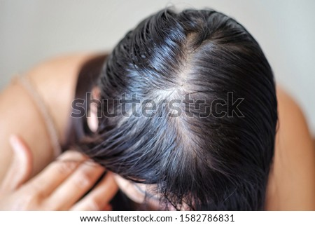Women with thin hair loss symptoms.