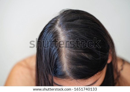 Women with thin hair problem.