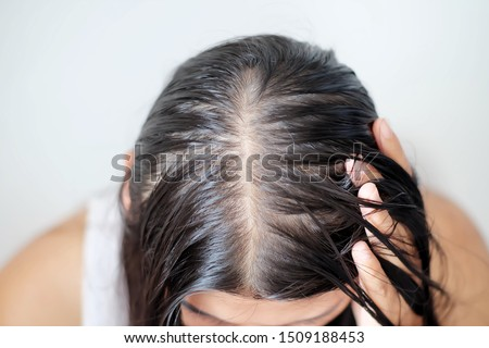 Women with thin hair there are pulses from the hair.