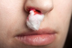Wound nosebleed - adult human nose injury blood