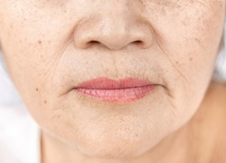 wrinkle freckles and skin line on close up elderly asian woman face 60-70 years old, healthy skin care concept