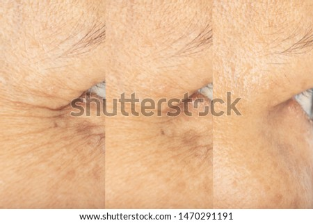 Wrinkles on the eyes and skin problem