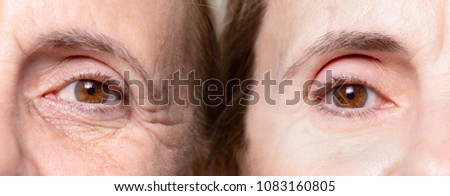 wrinkles under eye before and after botox treatment