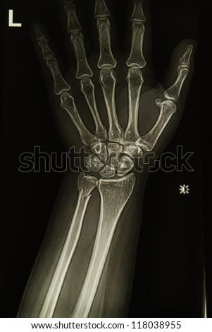 wrist and hand  x-ray image