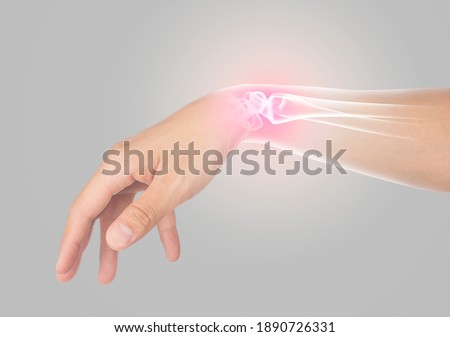wrist bones injury gray background wrist pain Сток-фото ©