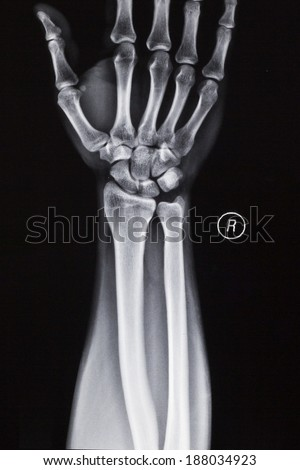 Wrist, wrist, radius and ulna, X-ray film #188034923