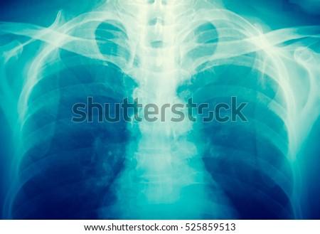 X-ray  #525859513
