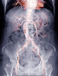 X-ray Abdomen  with mix cta whole aorta showing abdominal aorta and stent graft in abdomen for diagnotic abdominal aortic aneurysm or AAA.