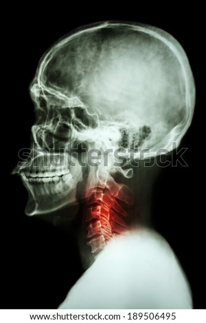 X-ray asian skull and cervical spine and neck pain