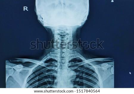 X-ray cevical spine(C-Spine) Finding no vertebral fractuer or bony destruction,no spondylolisthesis or scoliosis,Normar space joint,Medical image concept.