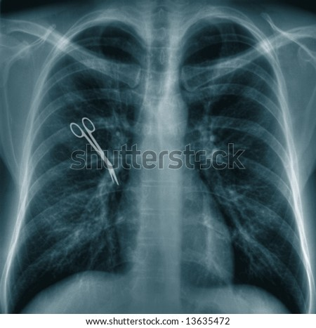 X-ray chest image with scissors - stock photo