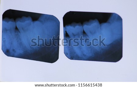 X-ray dental ingrown with blur #1156615438