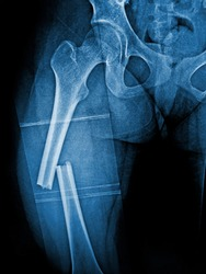 X-ray femur  show complete fracture shaft of femur and displace