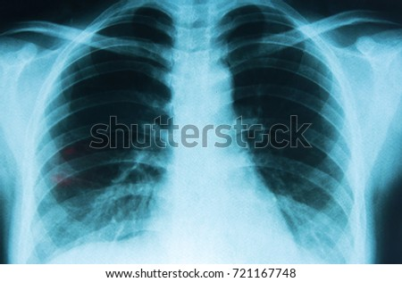 X-ray film #721167748