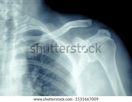 X-ray film Broken shoulder, HD X-ray film