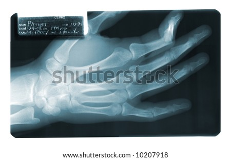 X-Ray film of a broken finger shattered into several pieces.