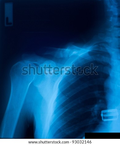 X-ray film of clavicle fracture.