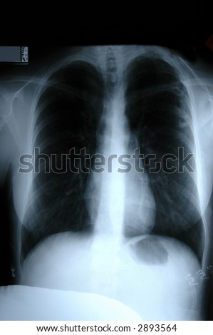 X-Ray film of human torso showing lungs and toraxic bones.