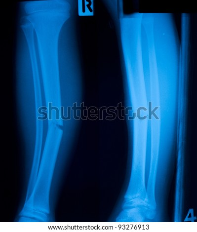 X ray film  of tibia leg fracture