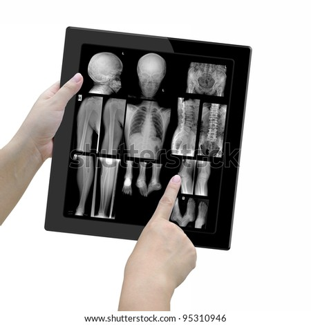 X ray films in tablet computer with woman doctor over white background.