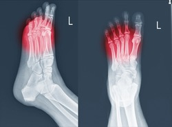 X-ray foot and ankle (AP,Lat)showing Metatarsal fractures on red point.Metatarsal fractures are among the most common injuries of the foot.