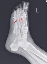X-ray foot and ankle showing Metatarsal fractures on red arrow point.Metatarsal fractures are among the most common injuries of the foot.