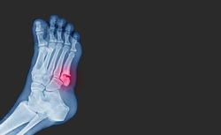 X-ray foot showing toe 5th bone fracture ( base of metatarsal fracture ) from against the wall. Highlight on fracture site and painful.Medical healthcare concept.