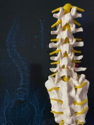 X-Ray for vertebral column, scoliosis