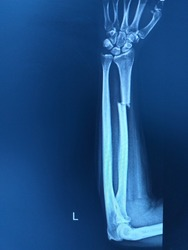 X-ray forearm ap views finding fracture distal shaft of radius.Severe swelling of soft tissue.Medical health concept.
