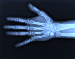 X-ray hand / Many others X-ray images in my portfolio.