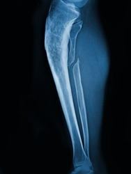 X-ray  human fibula fracture Lateral view