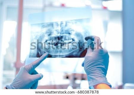 X-ray image. Foto stock ©
