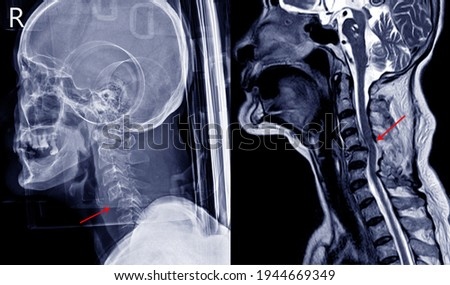 X-ray image and MRI of cervical spine case trauma showing C4,5 bilateral facet joint dislocation and facet fracture. The patient has complete spinal cord injury and paralysis of both legs.