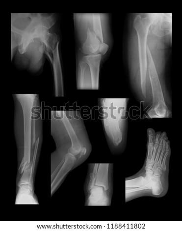 Broken Leg Pain Images and Stock Photos - Page: 4 - Avopix com
