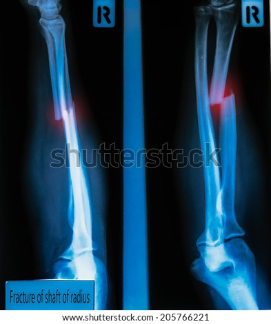 X-Ray Image  fracture shaft of radius & ulnar bone  for a medical diagnosis