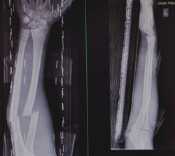 X-ray image, Left forearm AP-Lat, show radial and ulna fracture.