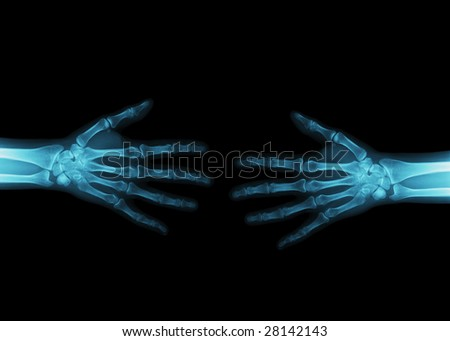 X-ray image of a handshake. Details of the bone structure of two hands.