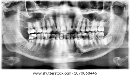 X Ray Image of a sleeping tooth #1070868446
