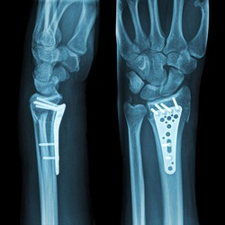X-ray image of broken arm. Distal radius fracture fixation with screw & plate.
