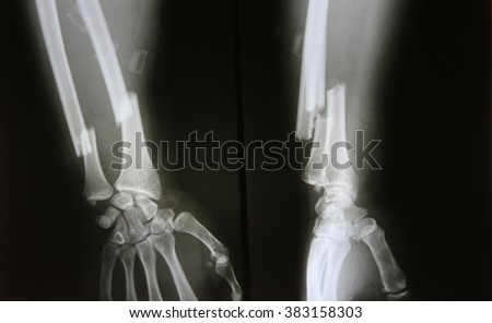 X-ray image of broken forearm, AP and lateral view show fracture of ulna and radius bone