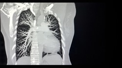 X-ray Image of Computed tomographic pulmonary angiography (CTPA) shows right pulmonary artery,  vessels and other organs of body human.