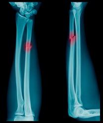 X-ray image of Forearm bone fracture in child's (Radius bone, Ulna bone)