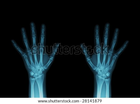 X-ray image of hands.