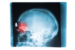 X-ray image of head and brain skull with red pain point in frontal sinuses, symorite concept