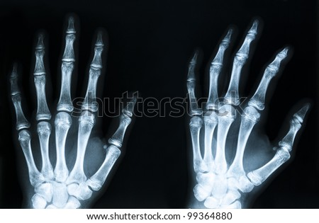 X-Ray image of human hands
